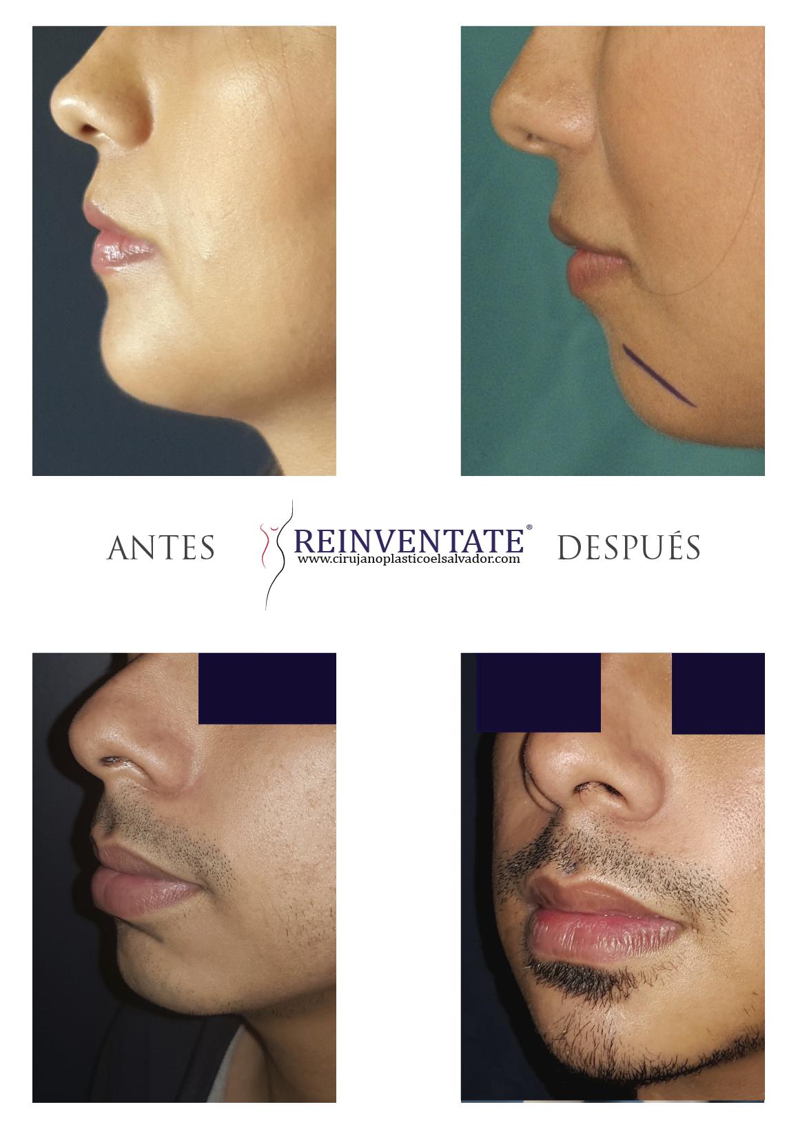 JOSEPHINE: Estetica facial aumento de menton